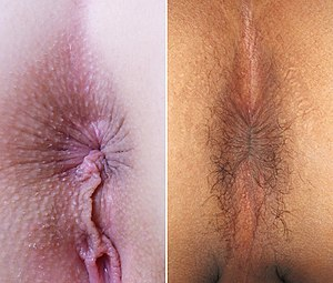 Human anus - The anus of a female (left, with prominent perineal raphe) and a male (right).