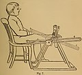 """Figure 7 - """"for exercising the flexors and extensors of the feet..."""" 1867 art detail, from- Infantile paralysis, and its attendant deformities (IA infantileparalys00tayl) (page 59 crop).jpg"""