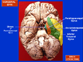 File-Cerebral Gyri - Inferior Surface1.png