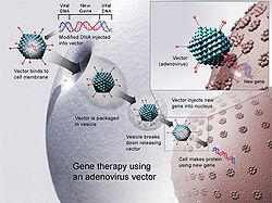 Gene therapy using an Adenovirus vector. A new gene is  inserted into an adenovirus vector, which is used to introduce the modified DNA into a human cell. If the treatment is successful, the new gene will make a functional protein.