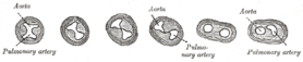 Transverse sections through the aortic bulb to show the growth of the aortic septum. The lowest section is on the left, the highest on the right of the figure.