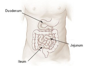 Ileum - Small intestine