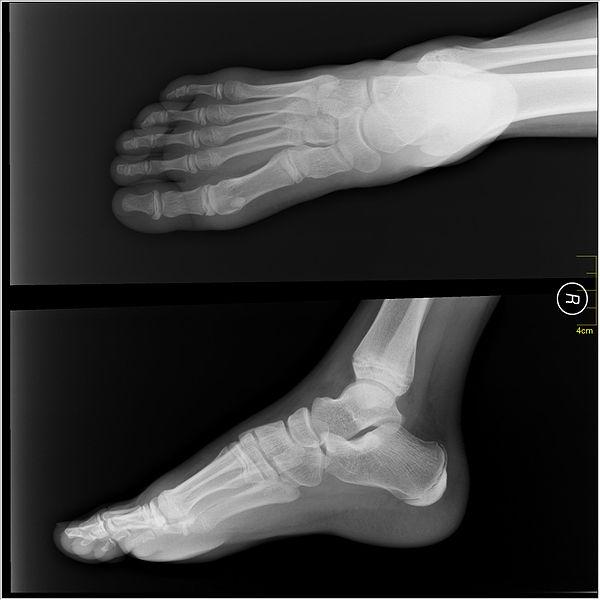 File:Medical X-Ray imaging GNE04 nevit.jpg