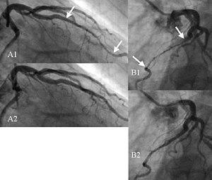 Myocardial bridge - Angiogram showing myocardial bridging resulting in arterial compression.