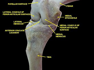 Medial epicondyle of the femur - Image: Slide 4wewe