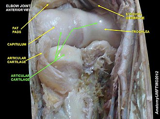 Hyaline cartilage - Image: Slide 6VVVVVV