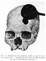 Top of a skull and instrument. Wellcome M0003706.jpg