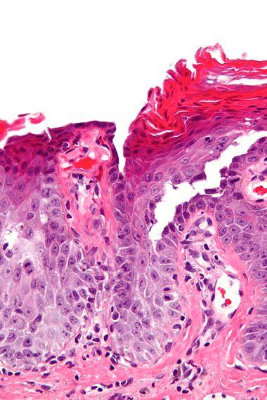 Transient acantholytic dermatosis - very high mag.jpg