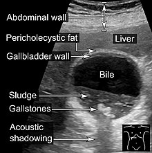Gallbladder - Wikipedia