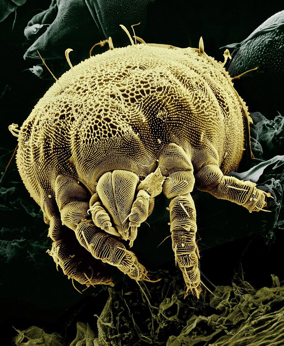 Yellow mite (Tydeidae) Lorryia formosa 2 edit