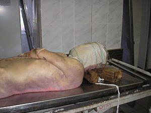 Livor mortis - Livor mortis in a corpse
