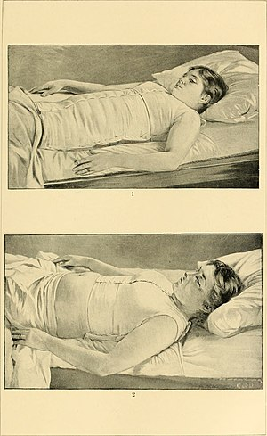 Maternal mortality in the United States - Illustration in black and white from an American obstetric textbook showing two images of a woman in labor. She is on her back lying in a bed with her head resting on a pillow in both illustrations, with a blanket covering the lower half of her body.The top image shows her wearing an abdominal binder and a breast binder. The bottom image shows her belly exposed and bigger than in the top image.