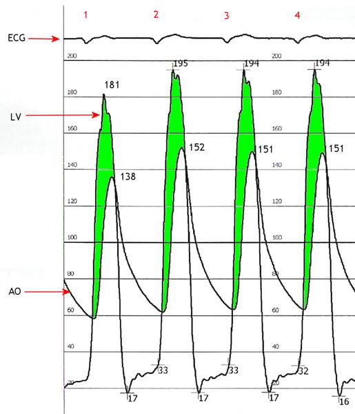 Fileaortic Stenosis Hemodynamic Pressure Tracingg Wikimedia