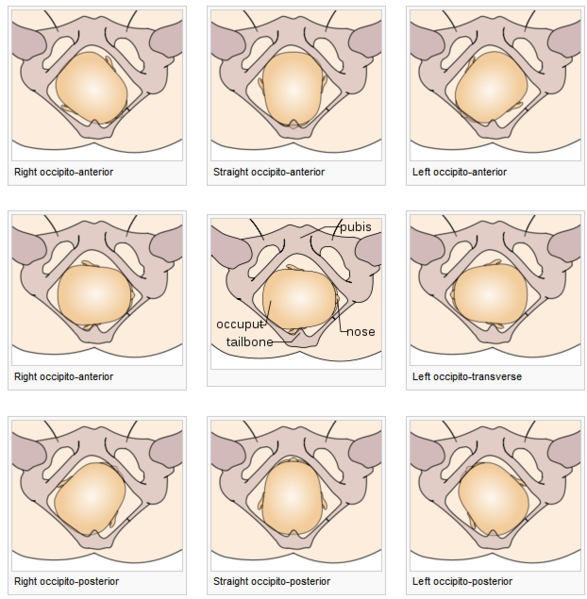 File:Cephalic presentations overview.png - Wikimedia Commons