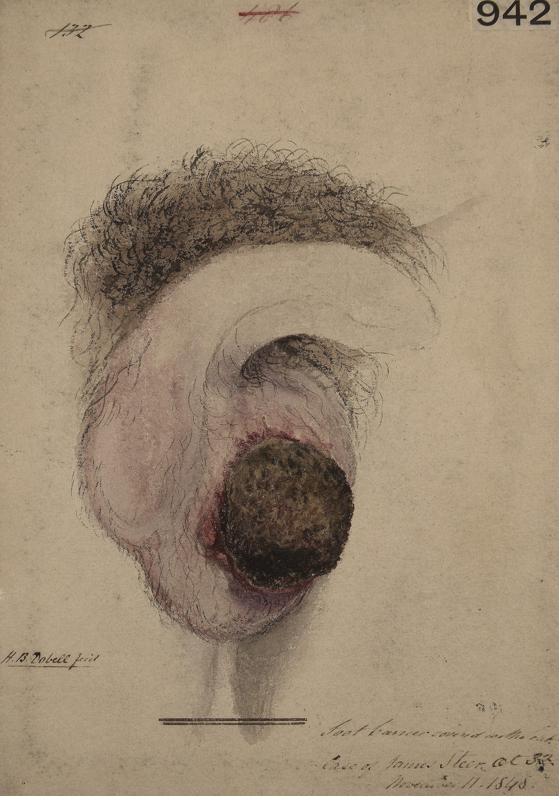 Chimney Sweeps Carcinoma Wikipedia
