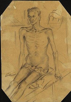 Dysentery Patient, Burma Hospital, Siam Art.IWMART1541787.jpg