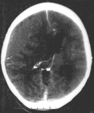 Neurodevelopmental disorder - CT scan showing epidural hematoma, a type of traumatic brain injury (upper left)