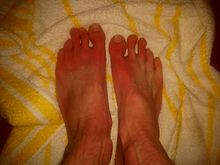 Erythromelalgia - NHS Choices