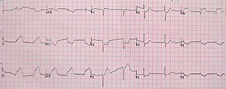 Electrocardiography in myocardial infarction - An acute STEMI involving the inferior and right ventricular wall. Reciprocal changes are seen in the anterior leads.