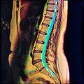 Lumbar MRI T1FSE T2frFSE STIR case2 06.jpg