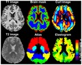 Murphy 2013 brain MRE complete.tif