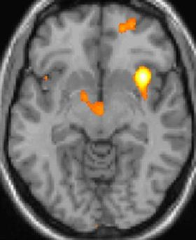 頭痛 群発 群発頭痛・目の奥痛に効果ありのベンザ鼻炎スプレー