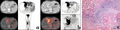 Parasite140075-fig5 Hepatic alveolar echinococcosis imaging.png