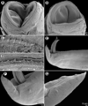 Parasite160062-fig3 - Nematode parasites of four species of Carangoides - Cucullanus bulbosus (SEM).png