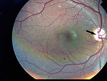 Photographic image of the patient right eye showing optic atrophy without diabetic retinopathy Wolfram syndrome.jpg