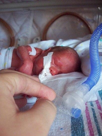 Premature infant with ventilator.jpg