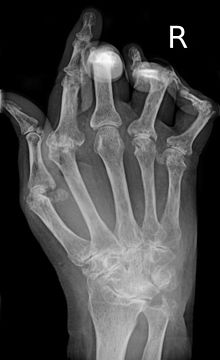 radiographic result of hand with RA