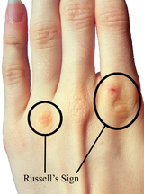 Russell's sign is the scarring that occurs on the dorsum of the hand, primarily the knuckles due to sticking fingers down throat to induce vomiting. The scars occur due to the skins repeated contact with the teeth.