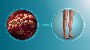 Signs and symptoms of Antiphospholipid syndrome