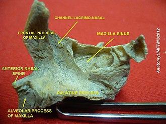 Anterior nasal spine - Image: Slide 12hhhh