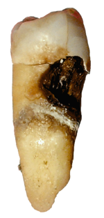 Tooth decay on a premolar.