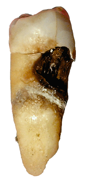 external image 287px-Toothdecay.png
