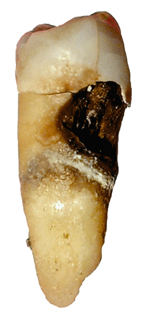 Cervical decay on a premolar