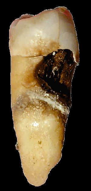 boka ligamentumok betegségei