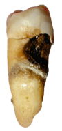 Cevical decay on a premolar.