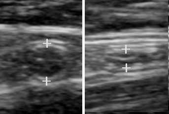 Ultrasonography of a normal appendix without and with compression