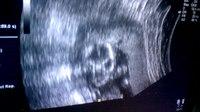 File:18 Week Ultrasound 4.webm