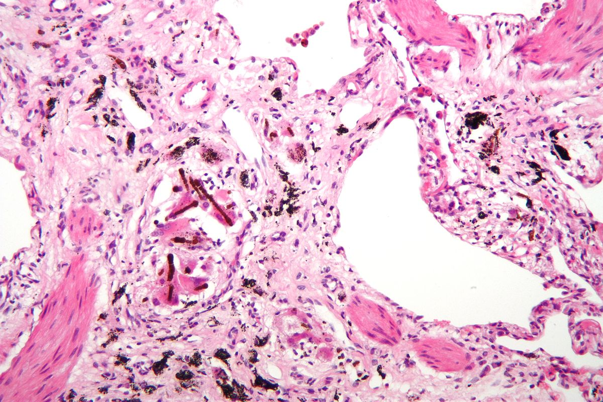Pneumoconiosis  Wikipedia