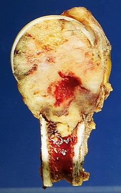 carcinoma della prostata nel fegato
