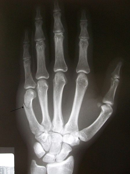 File:Boxers fracture.JPG