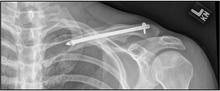 Clavicle Post-op.png