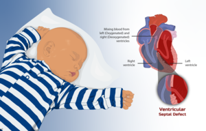 Depiction of a child with Congenital Heart Disease