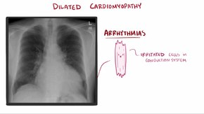 Ficheiro:Dilated cardiomyopathy video.webm