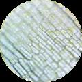 Elodea chloroplasts 7 400×.png