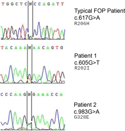 "DNA sequencing electropherograms of a typical FOP patient being compared to other 2 patients. The unsure base ""N"" indicates site heterozygous for mutation and wild-type gene. ""DNA sequencing electropherograms of a typical FOP patient"".png"