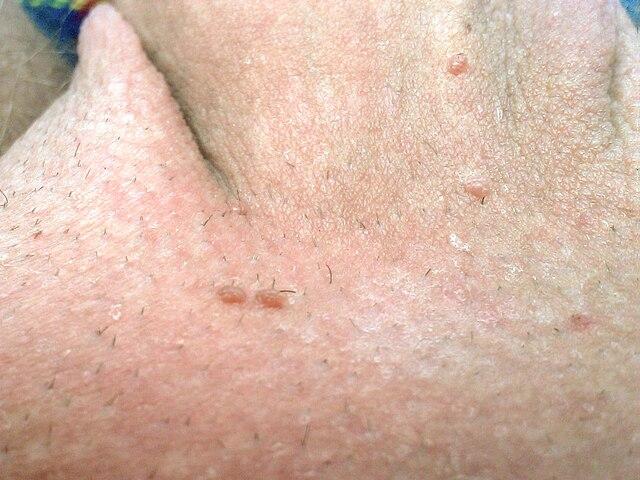 Feigwarzen an der rasierten Peniswurzel